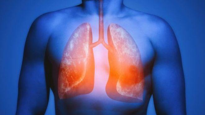 دراسة جديدة الرئة لديها قدرة سحرية على إصلاح نفسها وتمنع الخلايا السرطانية بعد ترك التدخين - روسيا تفرض قيودا جديدة على المدخنين وأماكن التدخين