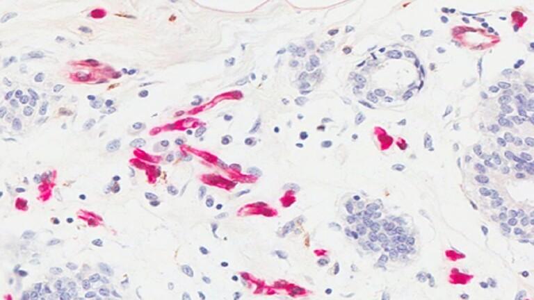 اكتشاف سبب الإصابة بأكثر أنواع السرطان انتشارا - اكتشاف سبب الإصابة بأكثر أنواع السرطان انتشارا