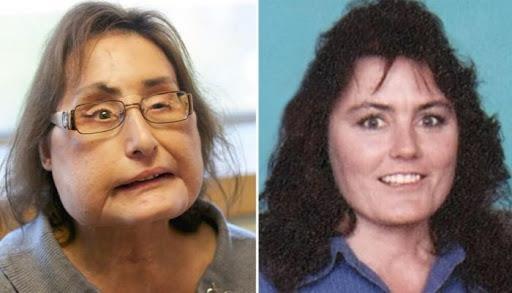 8b809701 241f 4165 9f92 3d5bd446a52d - وفاة أول أمريكية خضعت لعملية زرع وجه قبل 12 عاماً