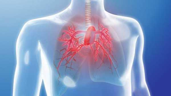 64f79f88 2bbd 4311 be19 60a35ce56c22 - أعراضه ومسبباته وطرق العلاج.. تعرّف على مرض ارتفاع ضغط الدم الشرياني الرئوي