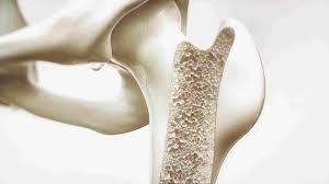 a6a72fca 0702 4660 a127 aa0675b114d6 - 4 إرشادات للوقاية من هشاشة العظام.. وهذه نسبة الإصابة به في المملكة