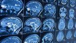 بحث يبعث على التفاؤل .. العلماء ينجحون في إصلاح أضرار السكتة الدماغية