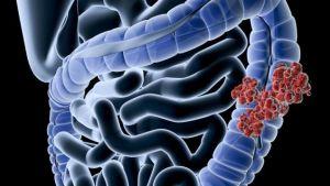 في شهر التوعية بسرطان القولون والمستقيم.. تعرّف على المرض وأعراضه وعوامل الإصابة به