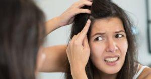 وصفات طبيعية للتخلص من قشرة الشعر