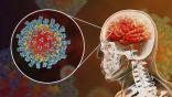 """وجود تلف بالأوعية الدموية.. دراسة حديثة تكشف تأثير فيروس """"كورونا"""" على الدماغ"""