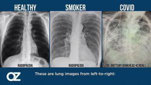 جراح أمريكي يقارن بين حالات الرئتين لدى المدخن وغير المدخن والمصاب بكورونا (فيديو)